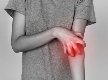 Jak radzić sobie z atopowym zapaleniem skóry?