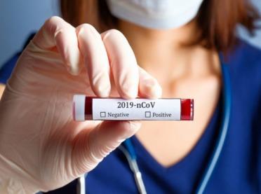 Sektor rolno-spożywczy apeluje o testy na koronawirusa